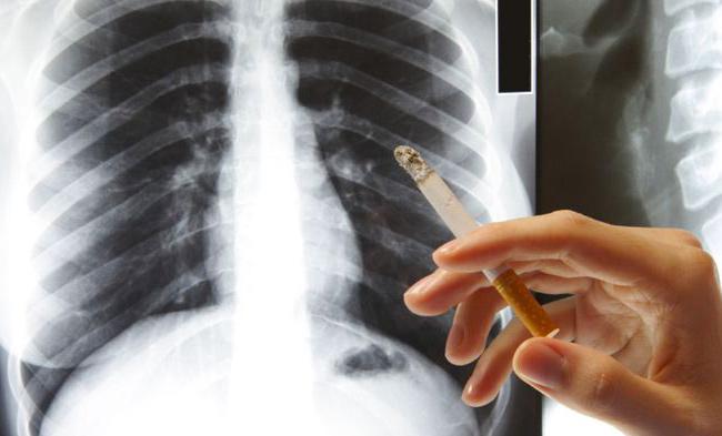 Снимок легких курильщика